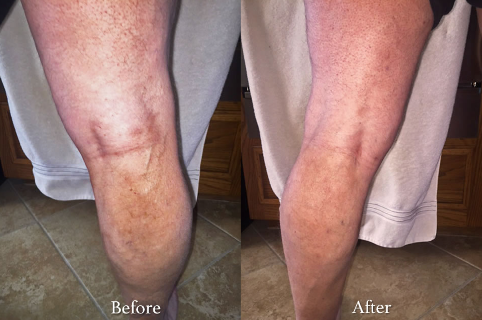 Vein Condition with Charlotte Radiology